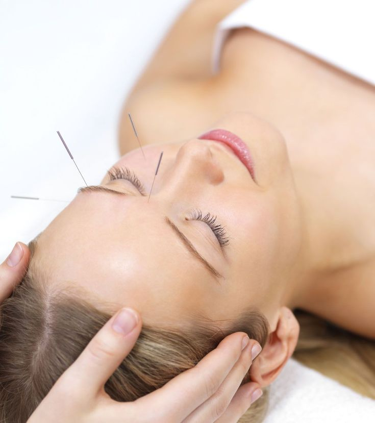 Acupuncture for Anxiety And How it Works #AcupunctureforAnxiety