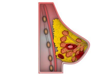 http://www.degroenezuster.nl/oestrogeen-dominantie-en-borstkanker/ ID-100192430
