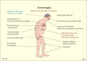 Acromegaly.  Hypersecretion of GH.  Usually starts between the 20s and 40s, and when it happens after epiphyseal plate closure, the first symptoms are often coarsening of facial features and soft-tissue swelling of hands and feet. Coarse body hair increases, skin thickens, size and function of sweat glands increases. Cartilage proliferation in larynx leads to deeper voice.  Joint problems are common, as is crippling arthritis. Diagnosed through CT or MRI, IGF-1 levels, and GH.: Nclex Nurs,  Internet Site, Nursingnur Schools,  Website, Nurs Schools, Web Site, Growth Hormone, Nursing Schools, Nurs Endocrine