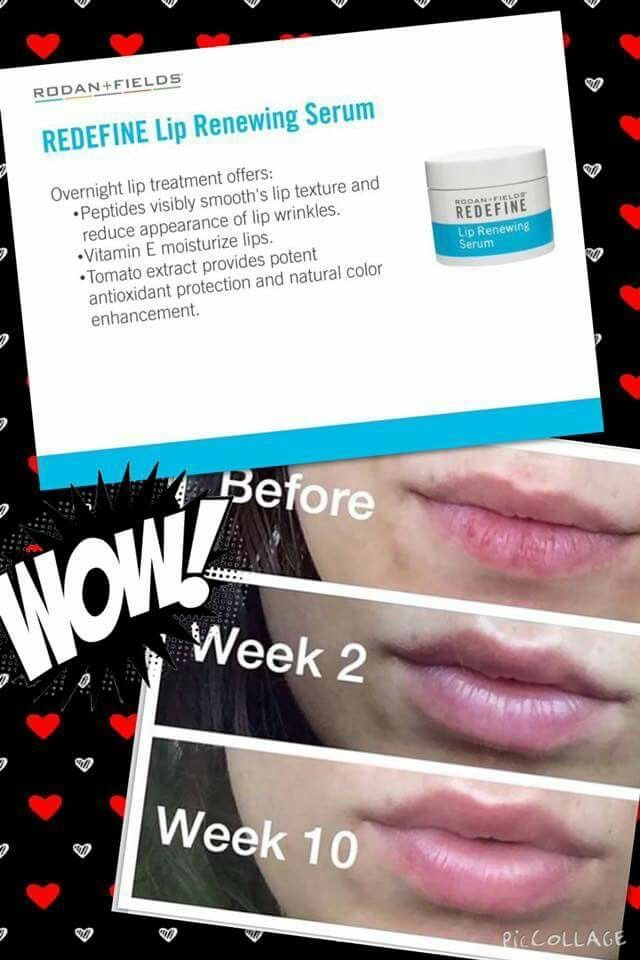 Get your lips looking kissable! Rodan and Fields lip renewing serum is heavenly! Message me today!