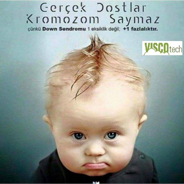 21 Mart Dünya Down Sendromu farkındalık Günü VİSCOTECH YANINIZDAYIZ .... 21 Mart Dünya down sendromu günüdür. Down sendromu 21. kromozomdan iki yerine üç tane olması sonucu oluşan bir rahatsızlıktır. Sağlıklı bir insanda 23 çift kromozom varken 21. kromozomdan 3 tane olması sonucu Down sendromlu bireylerin fazladan bir kromozomu vardır. Her 1000 bebekten birinde doğuştan görülen Down sendromu dünyada toplam 8.5 milyon kişide görülür.