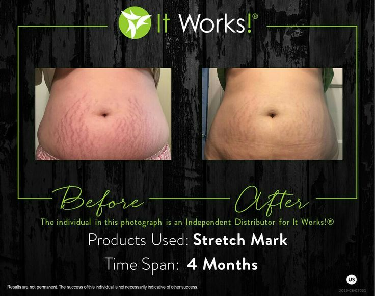 New Mom's... Older moms!!  It took only 4 months for this moma to achieve these awesome results!! It Works STRETCH MARK cream helped her!! What about you?  www.10tammyjanuary.myitworks.com Message me for more information text 417-247-9248