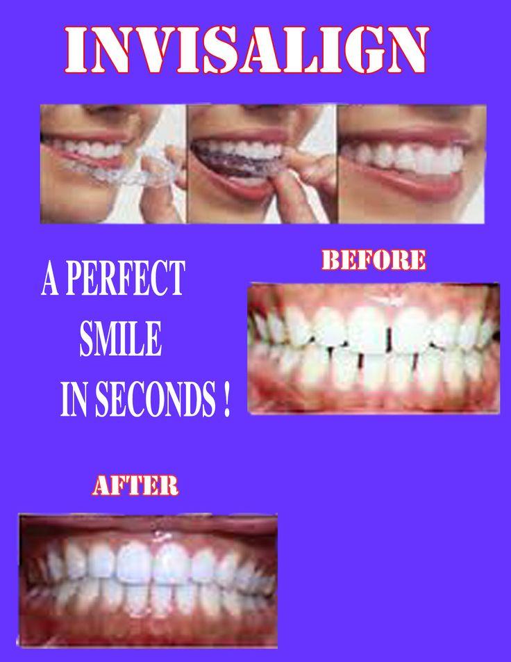 Invisalign , the key to straighten teeth. Teeth