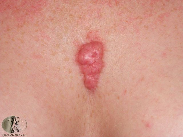 Keloid scar removal takes into account the size, depth, location of the scar, and age of the individual. Treatments such as injections and lasers are good..