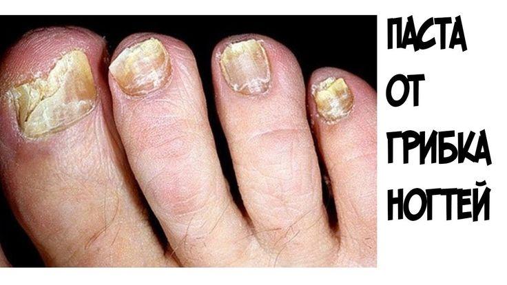 ШОК!!!Эта паста помогла мне БЫСТРО избавиться от грибка ногтей