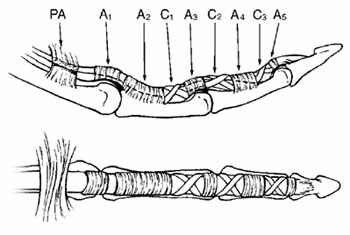Anatomy - Finger - Annular Pulleys - Side (top) and bottom (bottom) views of a finger. The annular pulleys (A1, A2, A3, A4, and A5) keep the tendons close to the bone. The thin, pliable cruciate pulleys (C1, C2, and C3) collapse to allow the finger to bend.