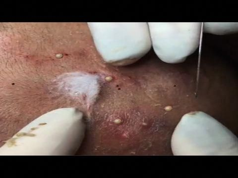 Severe Cystic Acne & Blackhead Removal - Cyst Pimple Popping