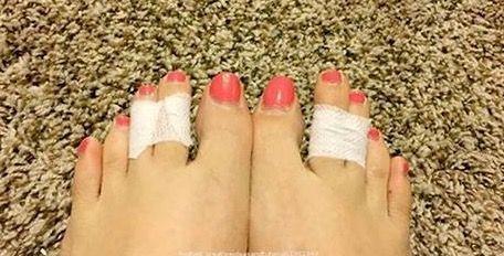 Ze bindt haar 2 middelste tenen aan elkaar vast! De reden is verbazingwekkend!