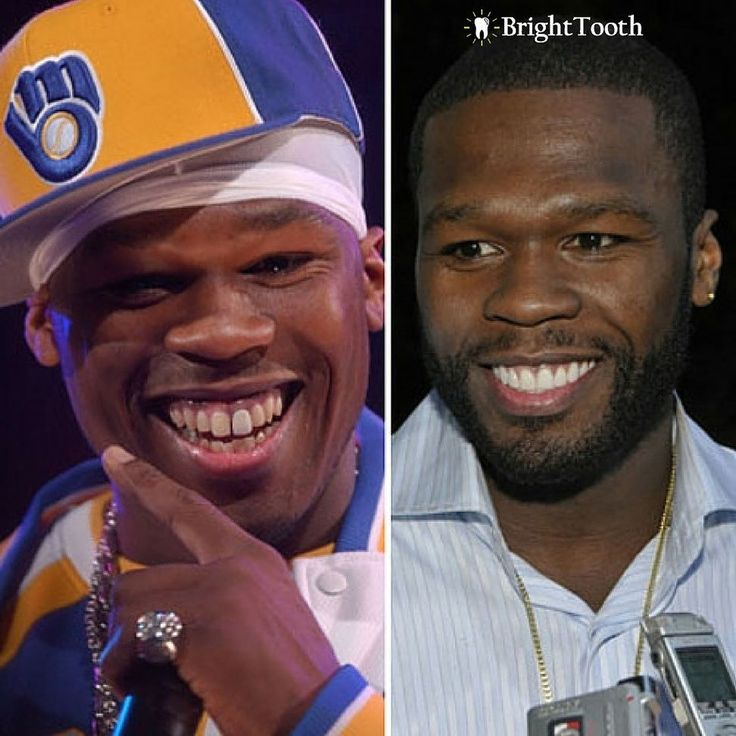 50 Cent loves Cosmetic Dentistry! All your favorite actors and artists weren't born with perfect teeth! www.brighttooth.com #dentalhealth #dentist #dentists #teeth #smile #dentistry #oralhealth #dentalhygiene #teethwhitening