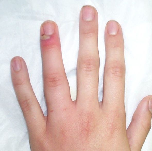 How To Avoid Nail Infections? :The most common nail infection is onychomycosis, which occurs when the fungi invade a finger nail or a toe nail or the skin underneath the nails.Few ways in which infection can be contracted