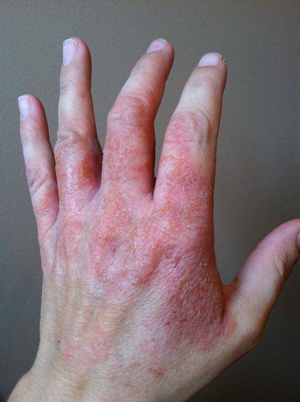 dermatitis on top of hands - photo #1
