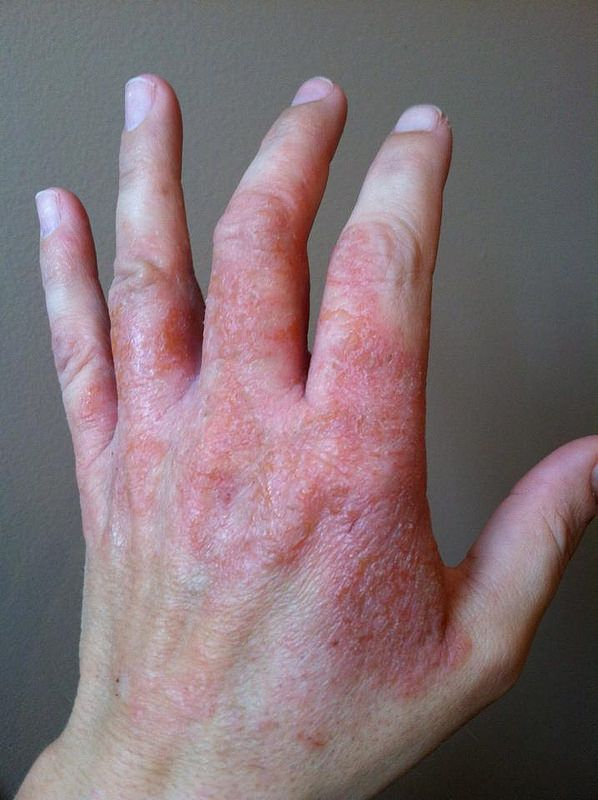 25+ best ideas about Rash On Hands on Pinterest | Hand ...