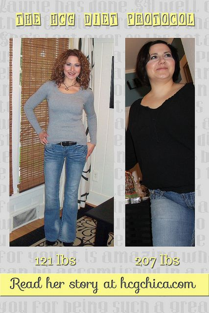 before-after-hcg-diet-results-laurie-hcgchica-2 by hcgchica, via Flickr