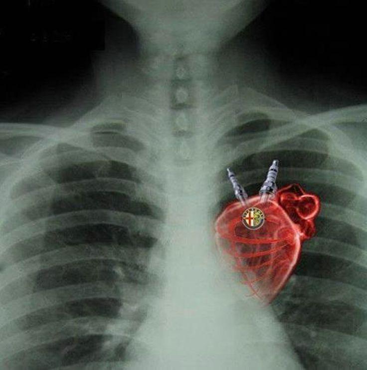 Corazón de Alfa Romeo