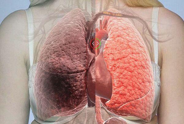 Καπνίζετε; Αυτές οι 6 τροφές καθαρίζουν τους πνεύμονες από τη νικοτίνη