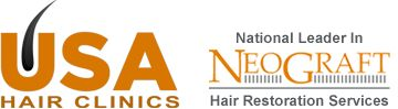 http://www.usahairclinics.com/ - female hair transplant and restoration, At USA Hair Clinics, our ultimate goal is to serve you and make your experience with us a pleasant one. Our center is staffed with caring, compassionate hair restoration professionals who understand what you're going through and want to help.