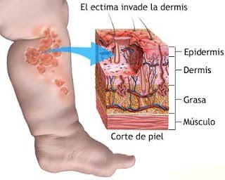 La erisipela es una enfermedad mediada por el streptococcus pyogenes el cual produce diseminacion linfática y consecuentemente una enfermedad aguda de la piel