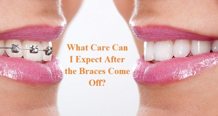Park Art|My WordPress Blog_How Long Does It Take To Remove Braces Off Teeth