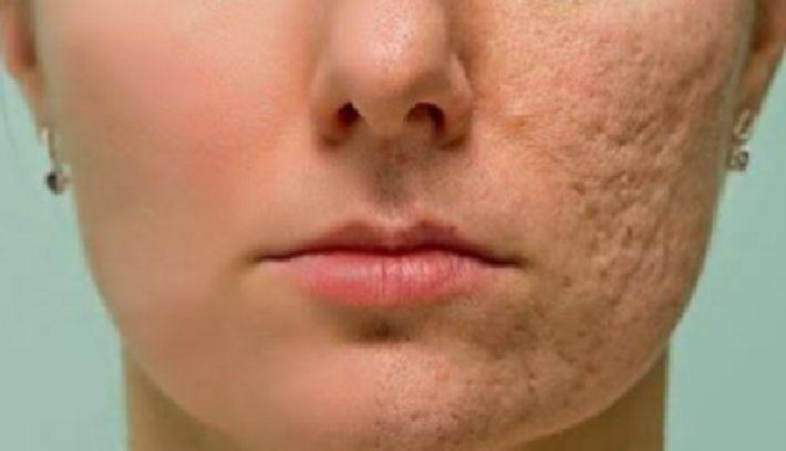 Маска для лица может бороться с акне, пятнами и шрамами на лице.Ингредиенты:  1 ч. л. меда 1 ст.л. измельченного мускатного ореха 1 ч. л. лимонного сока 1 ст.л. порошкообразной корицы