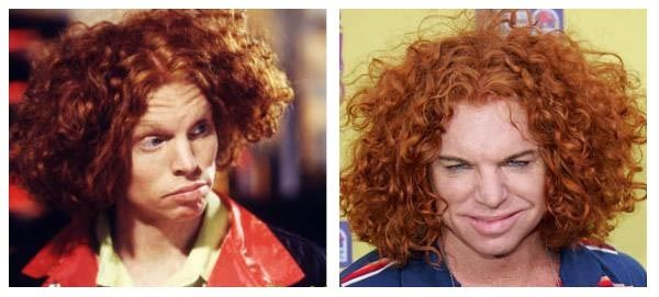 carrot top before plastic surgery Health Pictures of Surgery - Pictures Health Information