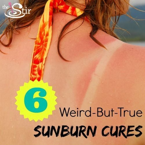 6 Surprising Sunburn Treatments You Already Have at Home | The Stir
