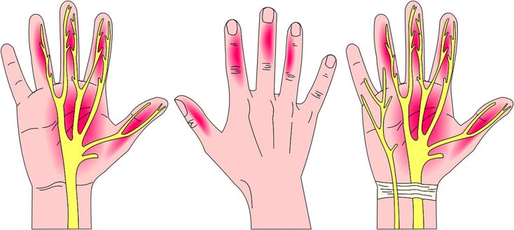Do you suffer from carpal tunnel syndrome simple
