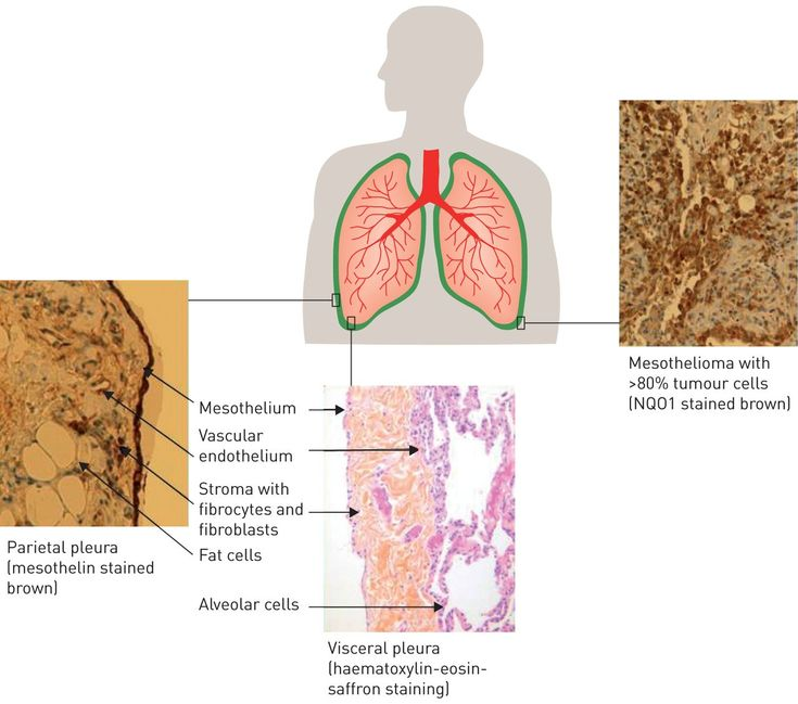 Cancer cells have the ability to spread from mesothelioma to other parts of the body where they can form new tumors. This process is called metastasis. New tumors are also called metastasis (in the singular, if there is only one) or metastasis (in the plural, if there are several).   #Peritoneal mesothelioma #Pleural Mesothelioma