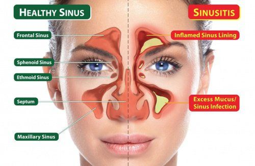 How To Clear Your Sinuses With Your Tongue In 20 Seconds And Cure Sinus Infection Naturally, Sinus infections are a common condition experienced by