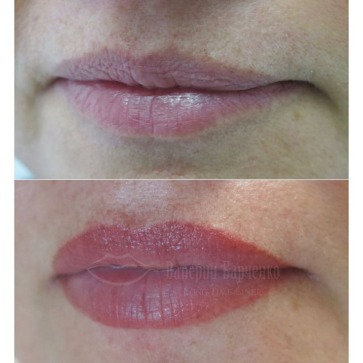 Lip Liner Tattoos Before and After - Overdrawn Lip Tattoos
