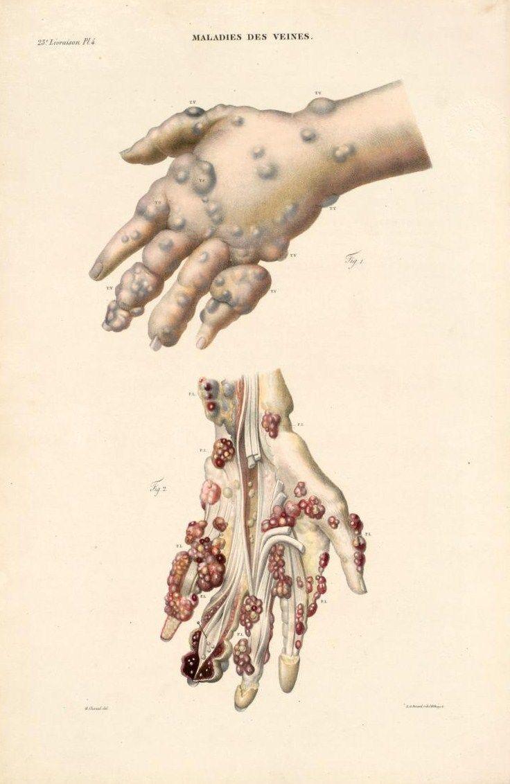 202 best MDD Pathologie images on Pinterest | Medical history ...