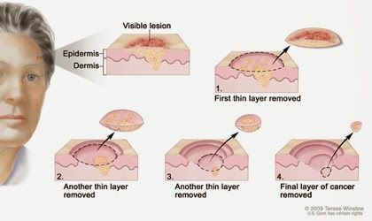 Skin cancer is so common now. Mohs surgery is one of the best ways to treat skin cancer, as it minimizes damage to healthy tissue. Good to know your options! #skincare #skincancer