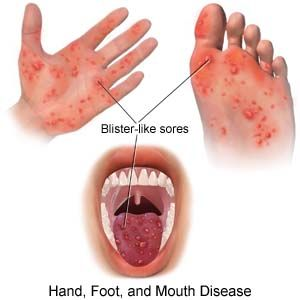 Home Remedies For Itching Hand Foot And Mouth Disease