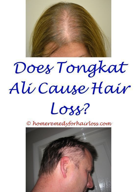 will saw palmetto regrow hair