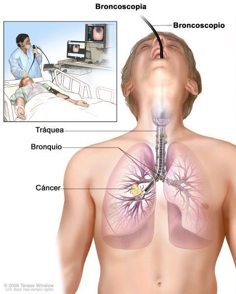 Broncoscopia; el dibujo muestra un broncoscopio insertado a través de la boca, la tráquea y el bronquio hasta el pulmón; los ganglios linfáticos a lo largo de la tráquea y los bronquios, y el cáncer en un pulmón. El recuadro muestra al paciente acostado sobre una camilla mientras se le realiza la broncoscopia.