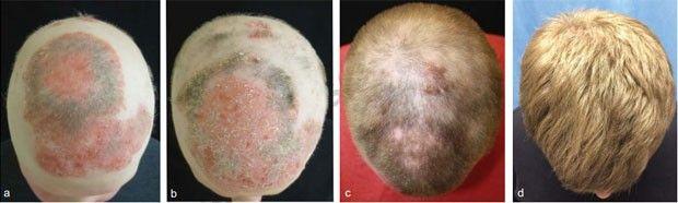 Imagens mostram evolução do quadro de alopecia após tratamento com droga (Foto: Reprodução/Journal of Investigative Dermatology)