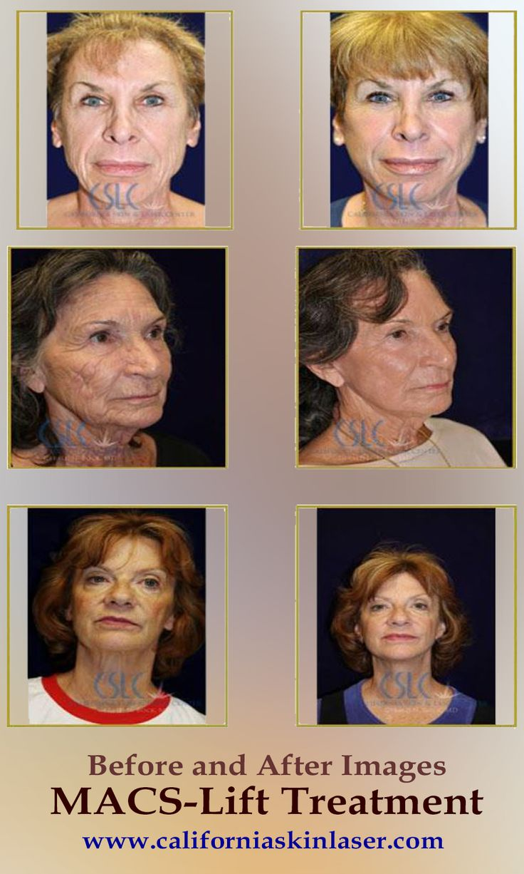 Not aware about MACS-Lift Treatment ? Then, click on the image to find out  more. #Facelift #surgery #surgeon #plasticsurgery #PlasticSurgeon #stockton #california #lodi #elkgrove