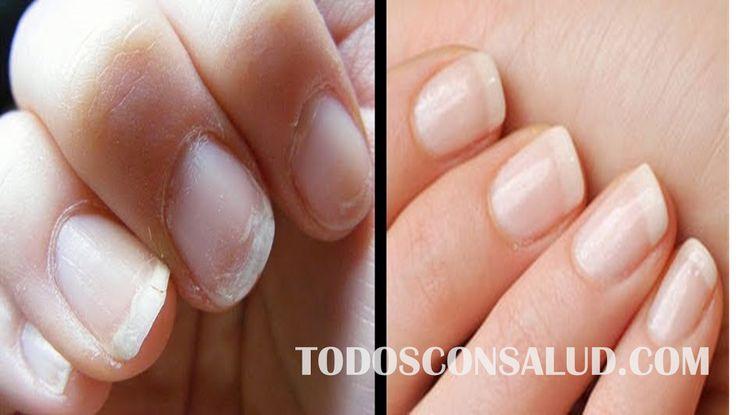 Cómo cuidar y fortalecer las uñas quebradizas de manera natural
