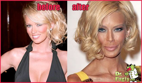 Jenna Jameson Before And After Extensive Facial Surgery