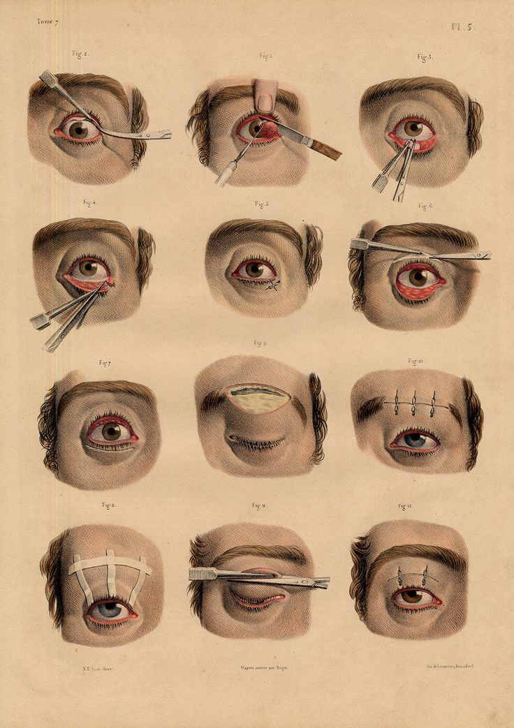 2 Antique Medical Anatomy Prints-EYELID-PTOSIS-ECTROPION-Pl. 5-6-Bourgery-1831