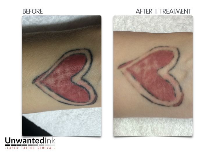 104 best laser tattoo removal sydney unwanted ink tattoo for Tattoo reviews sydney
