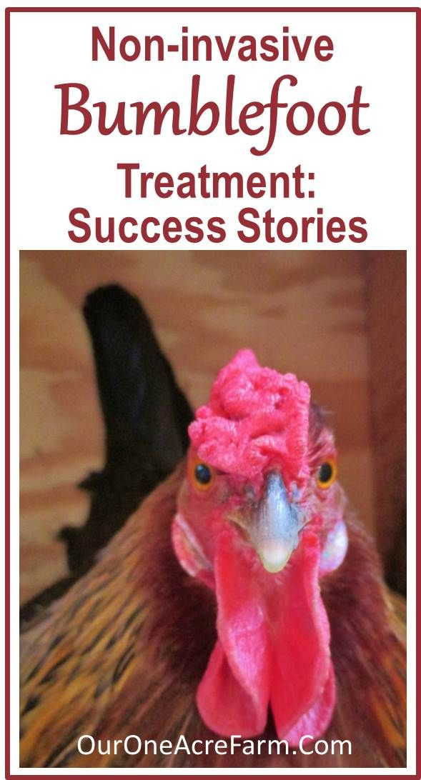 "Success stories with ""before"" and ""after"" photos, of non-invasive bumblefoot treatment in chickens, as a follow-up to my 1st post on this topic. There are no controlled studies of this treatment, but this anecdotal evidence says studies should be done. In the meantime, it's worth a try if your bird has bumblefoot, because it's so much easier on the bird than surgery!"