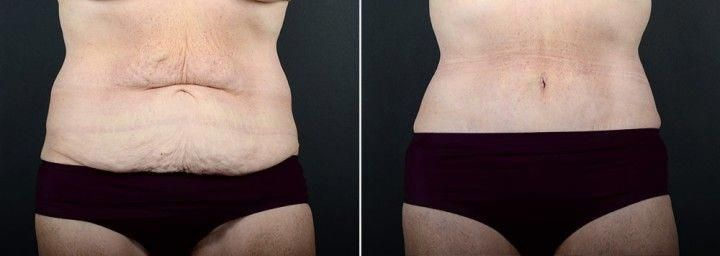 Before and after cosmetic surgery: tummy tuck with liposuction. #cellulitesurger…