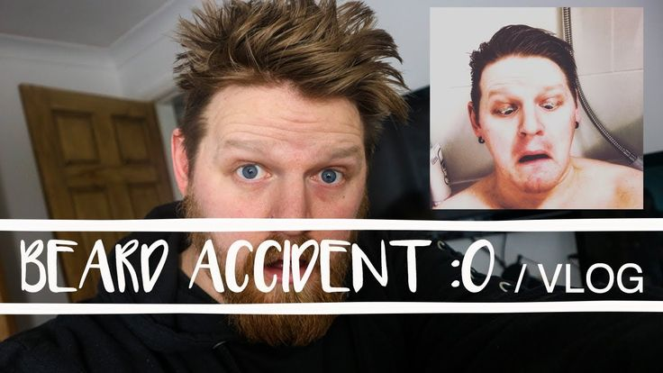 I HAD AN ACCIDENT WITH MY BEARD | VLOG