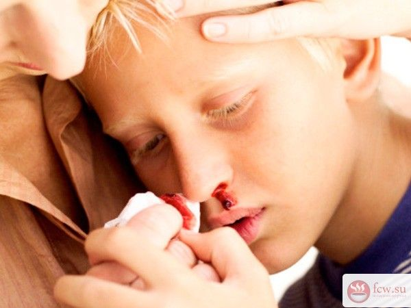 Кровь из носа у ребенка: причины, тактика действий https://www.fcw.su/blogs/moi-rebenok/krov-iz-nosa-u-rebenka-prichiny-taktika-deistvii.html  Выделение у малыша крови из носа повергает в ступор даже самых стойких к стрессам родителей – они опасаются, что кроха на грани смерти, но это далеко не так. Заметив пятна на одежде либо подушке, рекомендуется оказать малышу первую помощь и незамедлительно проконсультироваться со специалистом.