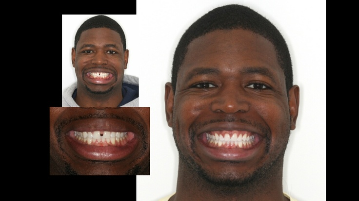 how to fix gap in front teeth with braces
