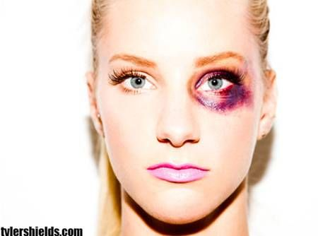 bruised eye — refer to this for makeup class — coloringHannah Dimorier
