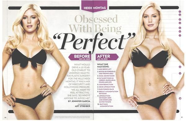 Heidi Montag plastic surgery, is she