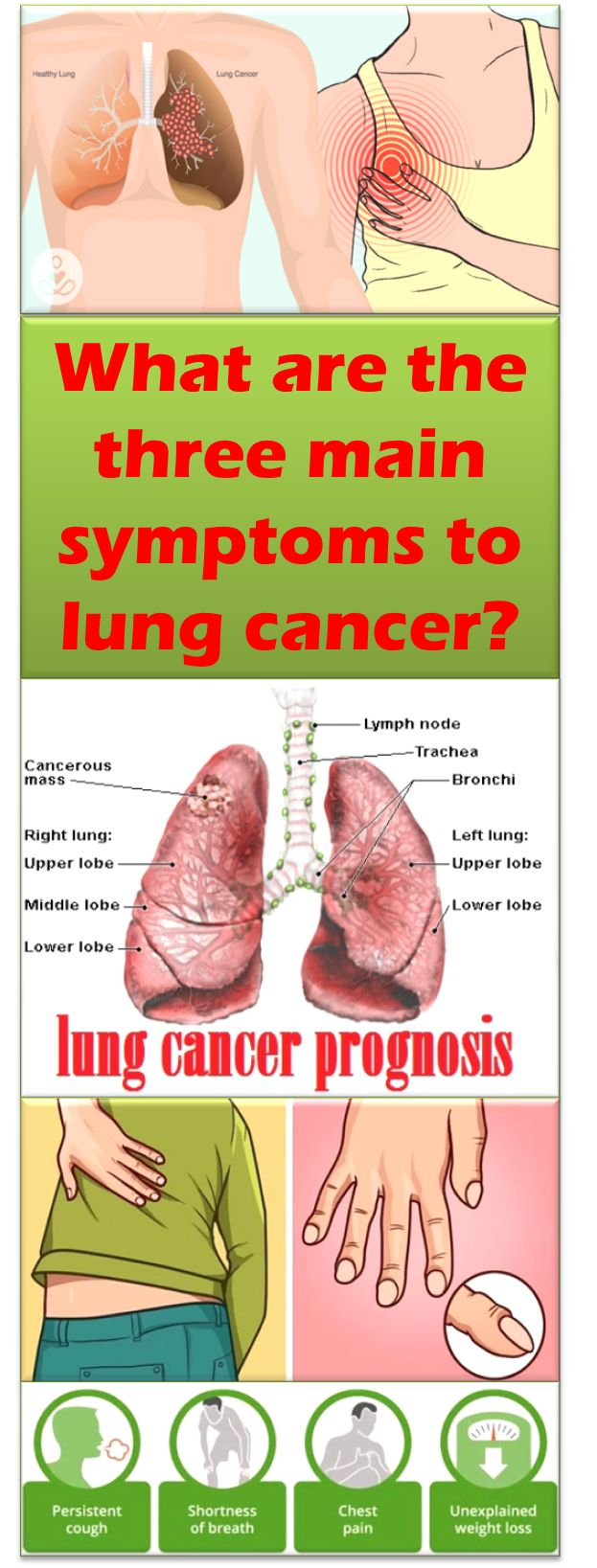 The main three symptoms to lung cancer that should not be ignored are shortness of breath, pain when breathing or coughing, and existence of a persistent cough, especially if it is accompanied by expectoration of sputum streaked with blood. Additionally, loss of appetite, fatigue, unusual losses of weight are three symptoms, which are indicative of lung cancer...