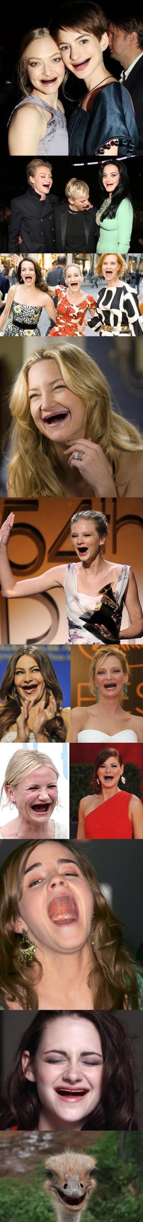 Des actrices sans les dents