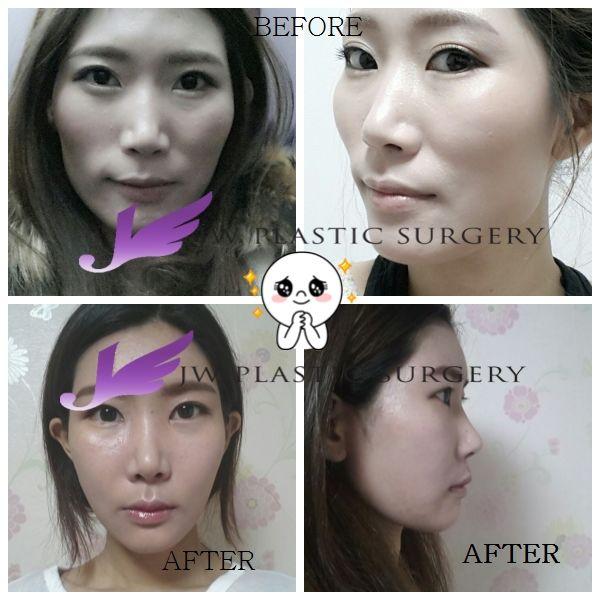 JW整形医院整形模特,在JW 做了削骨改脸型面部轮廓手术。 这是手术前和手术后4个月时的前后对比照片。  更多韩国整形咨询,请参考http://bitly.com/hanguojwzhengxing  怎么联系到jw整形医院? 韩国JW整形医院地址: 韩国首尔市江南区新沙洞598-6  JW整形医院中文电话: +821022135114 / +821028105114  JW整形医院中文微信: jw_5114 / jw_821028105114  JW整形医院Email: jw_beauty@naver.com